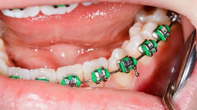 15 Cara Mudah Perawatan Dan Merawat Gigi Behel Tanpa Ribet Dan Alami