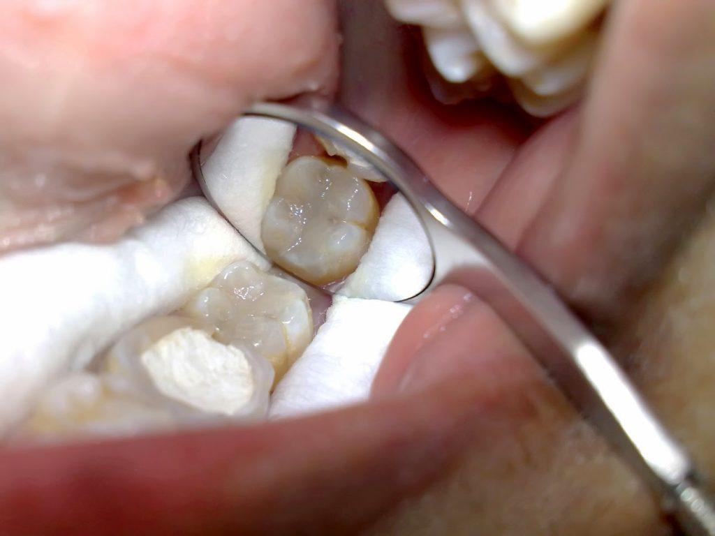 10 Cara Mudah Merawat Gigi Tambalan Agar Tetap Putih Dan Sehat